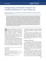 Compensatory orthodontic treatment for.pdf